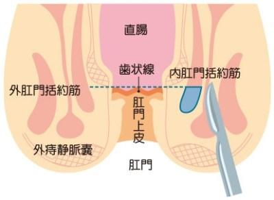 側方皮下内括約筋切開術(LSIS)